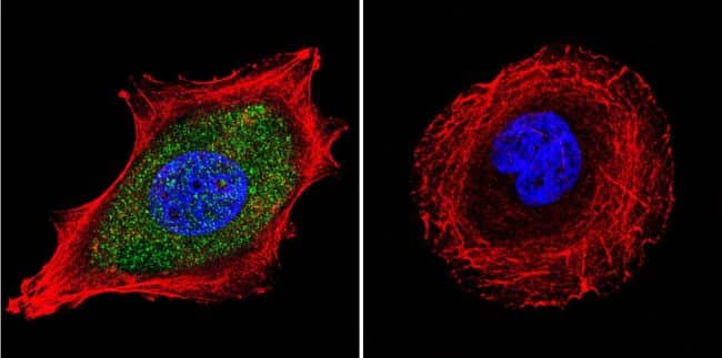 Estrogen Receptor alpha Antibody in Immunofluorescence (IF)