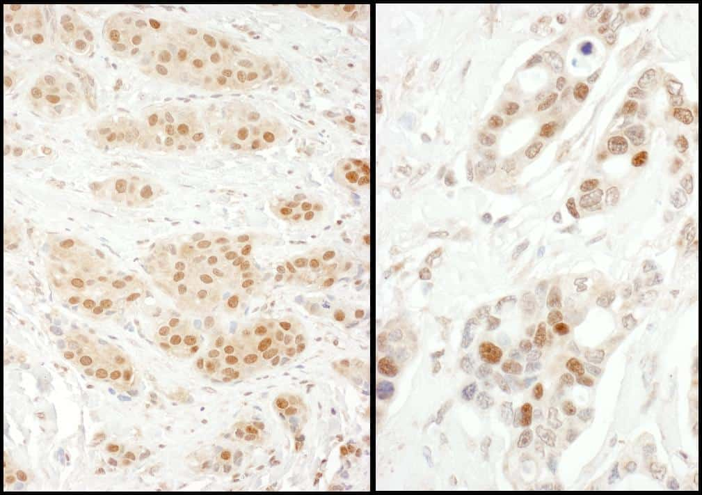 Exportin-5 Antibody in Immunohistochemistry (IHC)