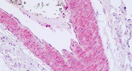 PAR2 Antibody in Immunohistochemistry (Paraffin) (IHC (P))
