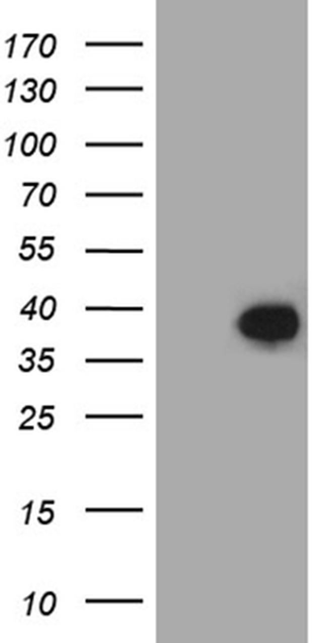 FAM151B Antibody in Western Blot (WB)