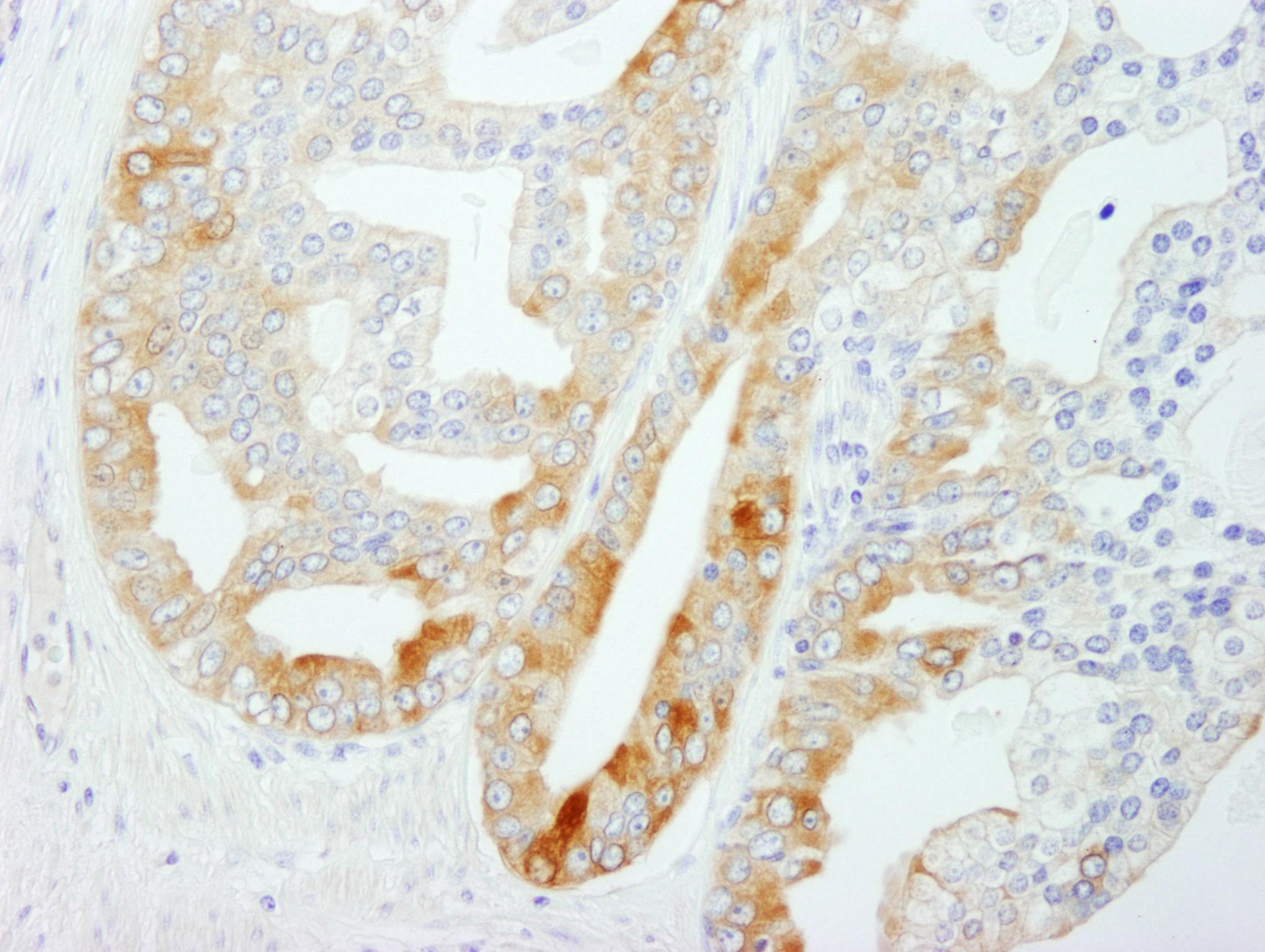 FASN Antibody in Immunohistochemistry (IHC)