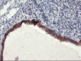 FBXO21 Antibody in Immunohistochemistry (Paraffin) (IHC (P))