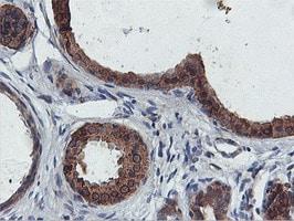FDFT1 Antibody in Immunohistochemistry (Paraffin) (IHC (P))