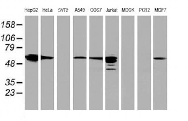FDFT1 Antibody in Western Blot (WB)