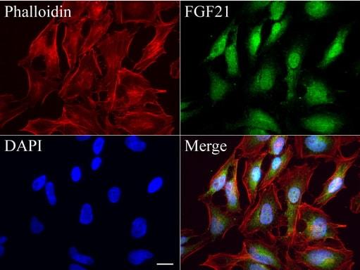 FGF21 Antibody in Immunocytochemistry (ICC/IF)
