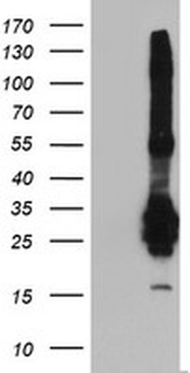 FGF21 Antibody in Western Blot (WB)