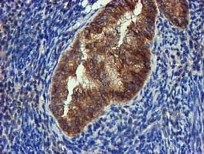 FGFR2 Antibody in Immunohistochemistry (Paraffin) (IHC (P))
