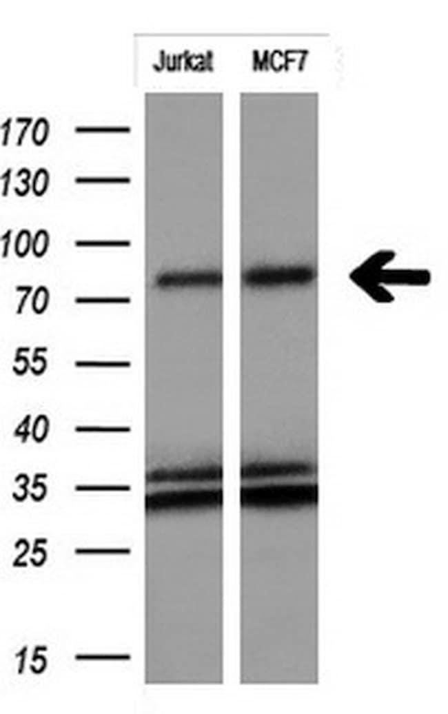 FGFR2 Antibody in Western Blot (WB)