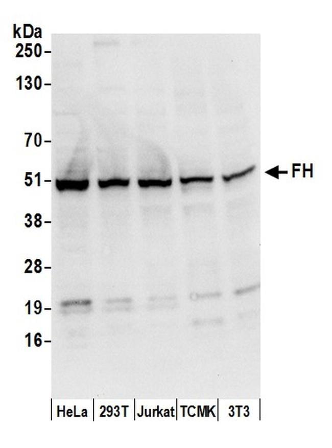FH/Fumarate Hydratase Antibody in Western Blot (WB)