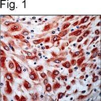 VEGF Receptor 3 Antibody in Immunohistochemistry (IHC)