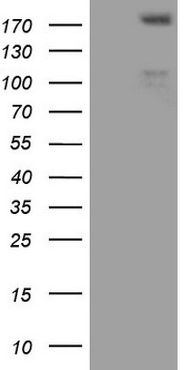 FLT4 Antibody in Western Blot (WB)