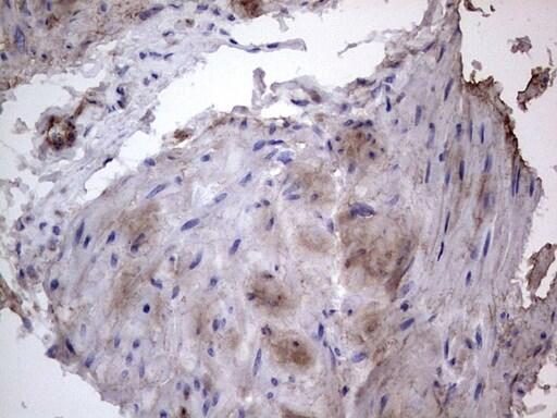 FN1 Antibody in Immunohistochemistry (Paraffin) (IHC (P))