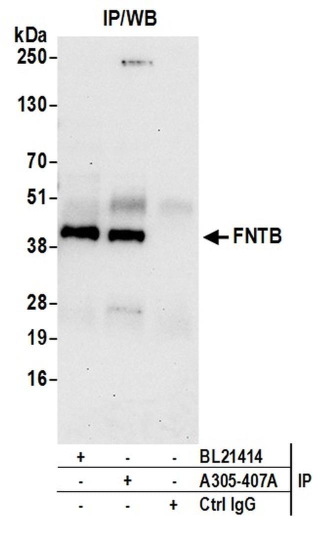 FNTB Antibody in Immunoprecipitation (IP)