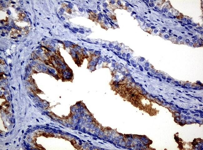 FOLH1 Antibody in Immunohistochemistry (Paraffin) (IHC (P))