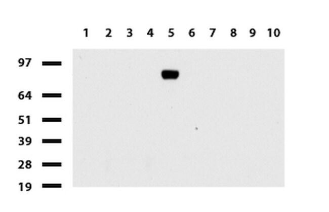 FOLH1 Antibody in Western Blot (WB)