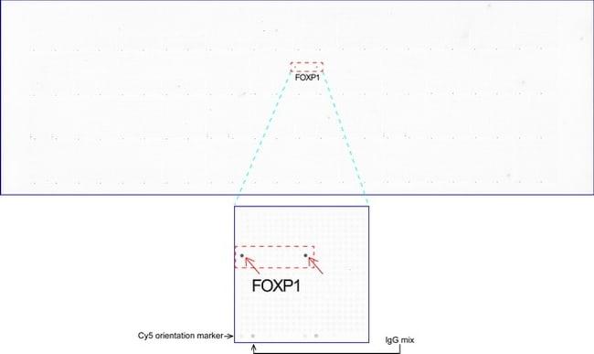 FOXP1 Antibody in Peptide Array (ARRAY)