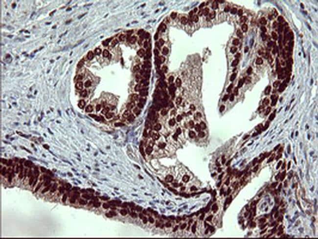 FOXP1 Antibody in Immunohistochemistry (Paraffin) (IHC (P))