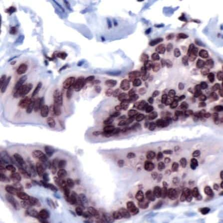 FOXP4 Antibody in Immunohistochemistry (IHC)