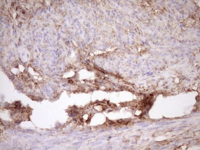 FSCN1 Antibody in Immunohistochemistry (Paraffin) (IHC (P))