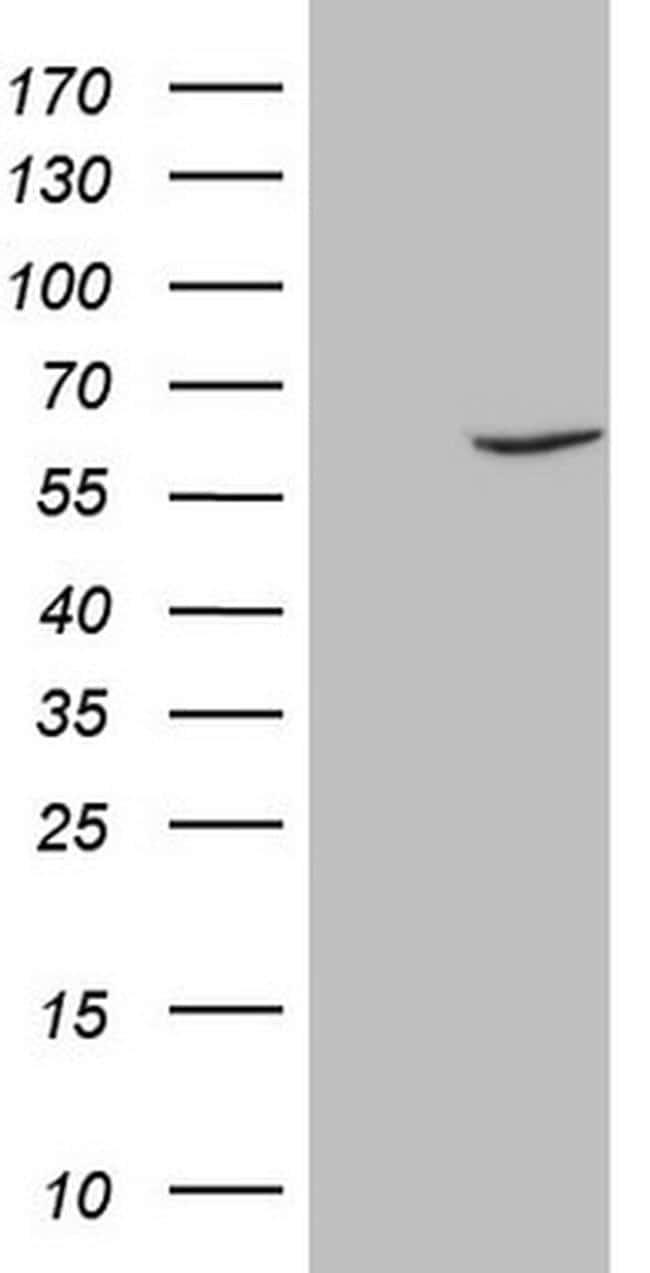 FSCN1 Antibody in Western Blot (WB)