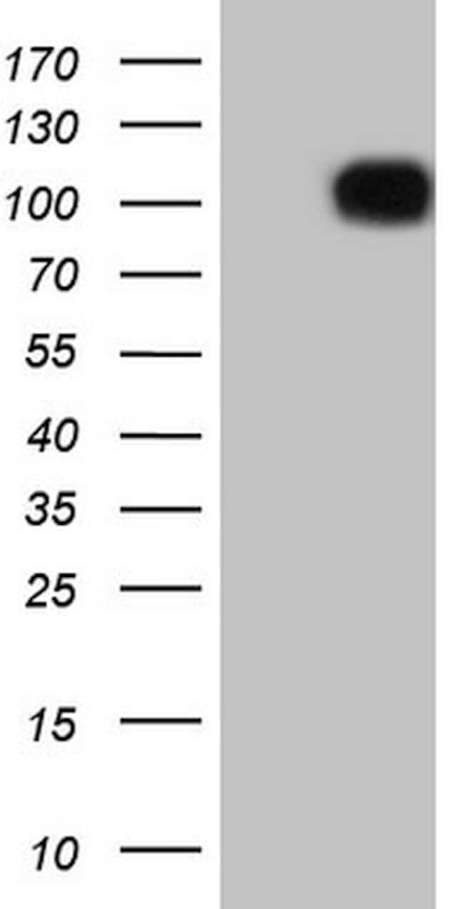 FSIP1 Antibody in Western Blot (WB)