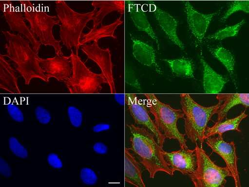 FTCD Antibody in Immunofluorescence (IF)