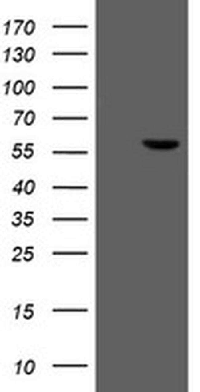FTCD Antibody in Western Blot (WB)