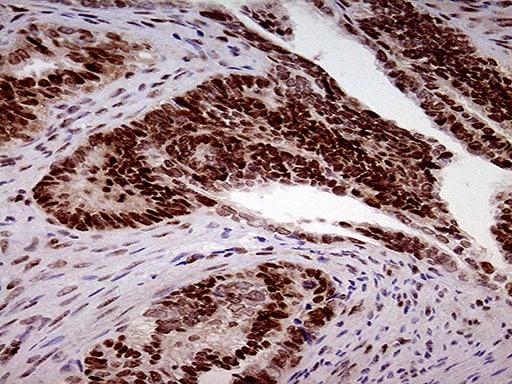 FTO Antibody in Immunohistochemistry (Paraffin) (IHC (P))