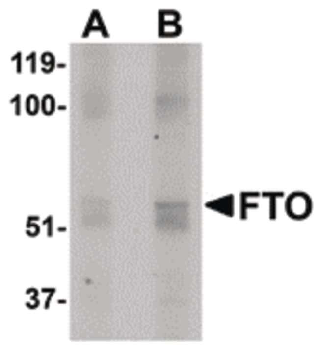 FTO Antibody in Western Blot (WB)