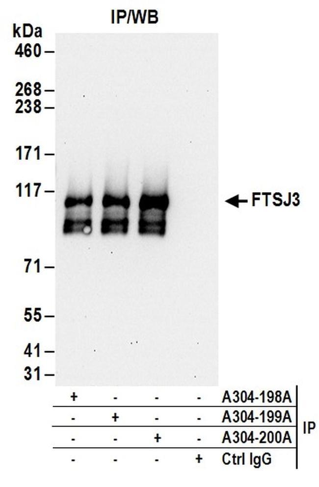 FTSJ3 Antibody in Immunoprecipitation (IP)