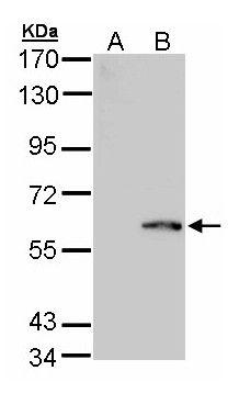 FPGS Antibody in Western Blot (WB)