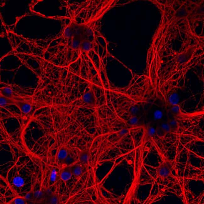 Mouse IgG (H+L) Highly Cross-Adsorbed Secondary Antibody in Immunofluorescence (IF)