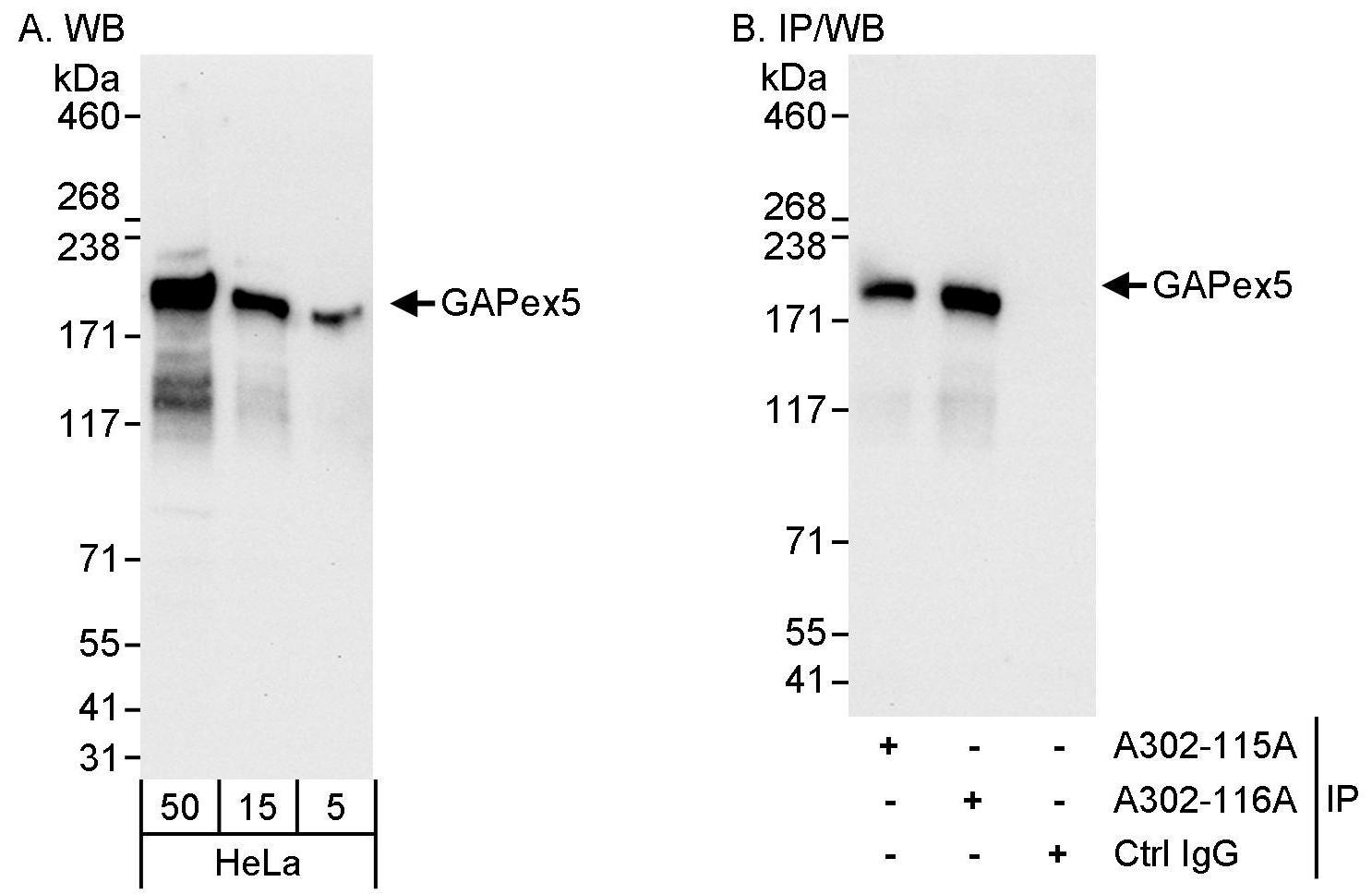 GAPex5 Antibody in Western Blot (WB)