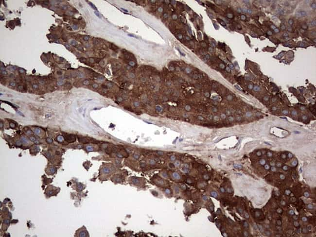 GARS Antibody in Immunohistochemistry (Paraffin) (IHC (P))