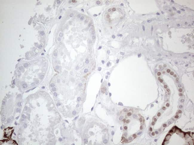 GATA3 Antibody in Immunohistochemistry (Paraffin) (IHC (P))
