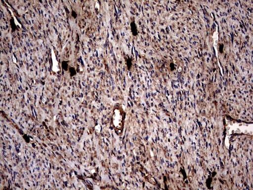 GBA Antibody in Immunohistochemistry (Paraffin) (IHC (P))
