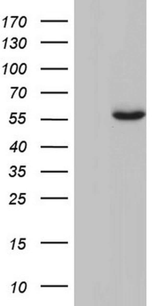 GBA Antibody in Western Blot (WB)