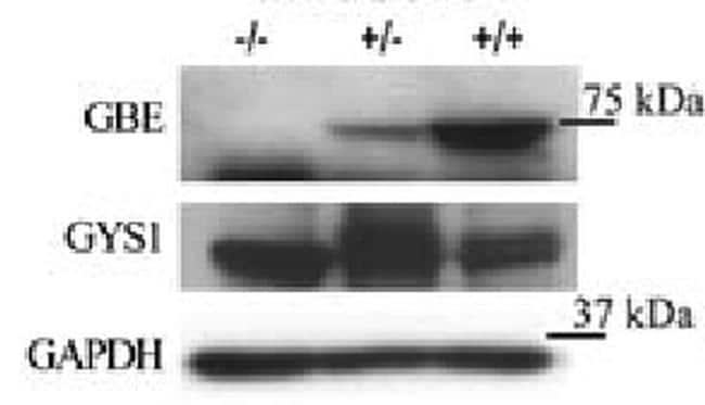 GBE1 Antibody in Western Blot (WB)
