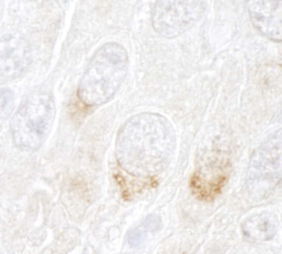 GBF1 Antibody in Immunohistochemistry (IHC)