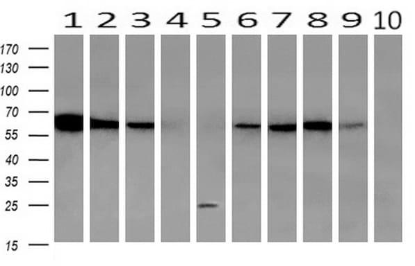 GBP1 Antibody in Western Blot (WB)