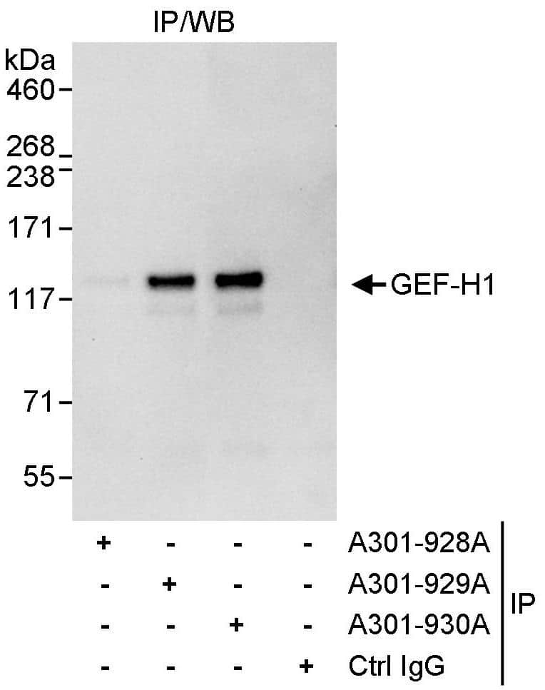 GEF-H1 Antibody in Immunoprecipitation (IP)