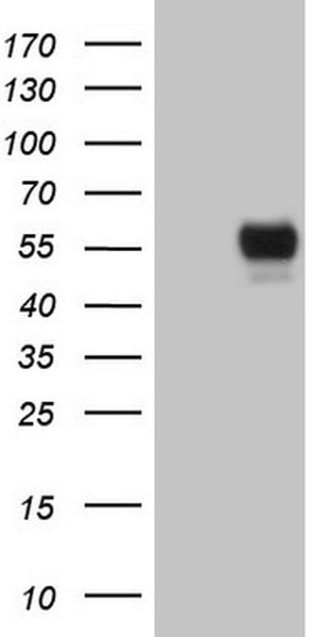GFI1 Antibody in Western Blot (WB)