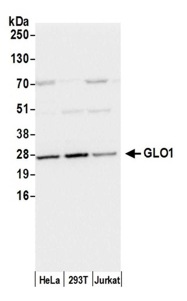 GLO1/Glyoxalase I Antibody in Western Blot (WB)