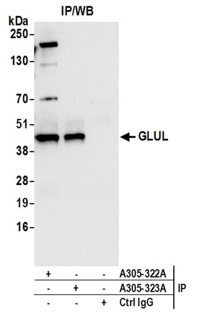 GLUL/Glutamine Synthetase Antibody in Immunoprecipitation (IP)