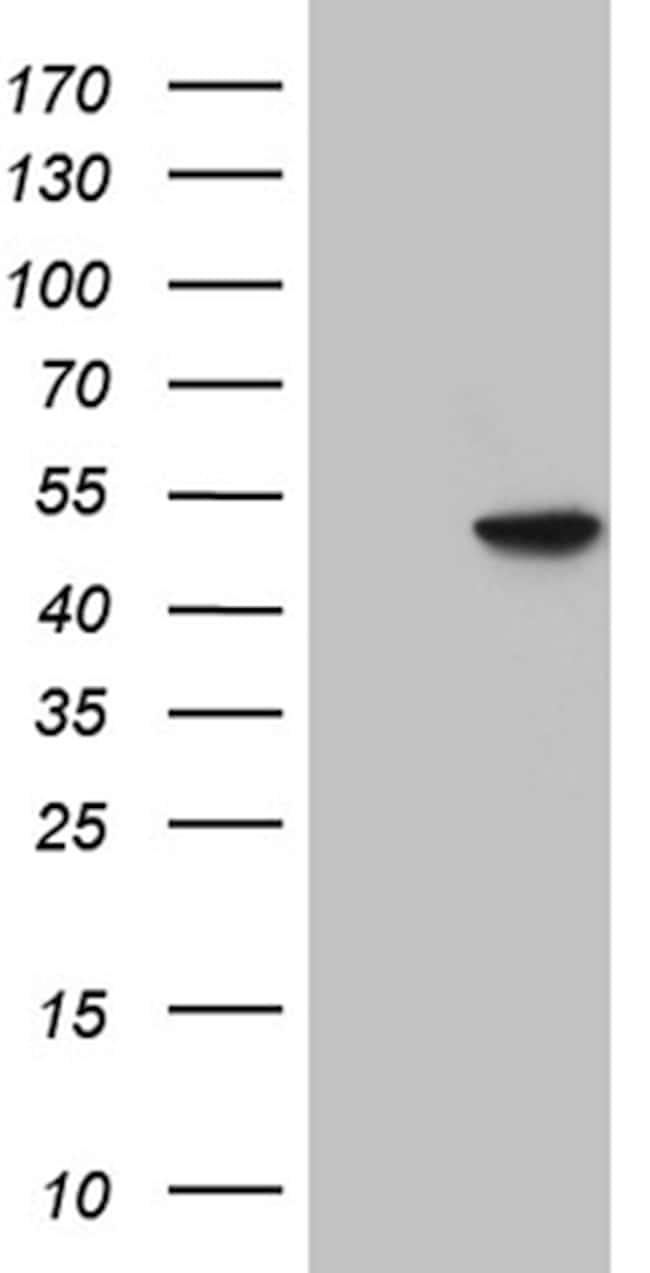 GNAS Antibody in Western Blot (WB)