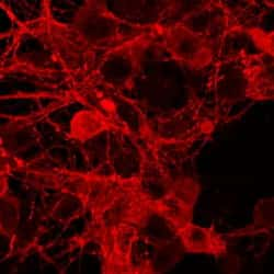 Substance P Antibody in Immunohistochemistry (IHC)