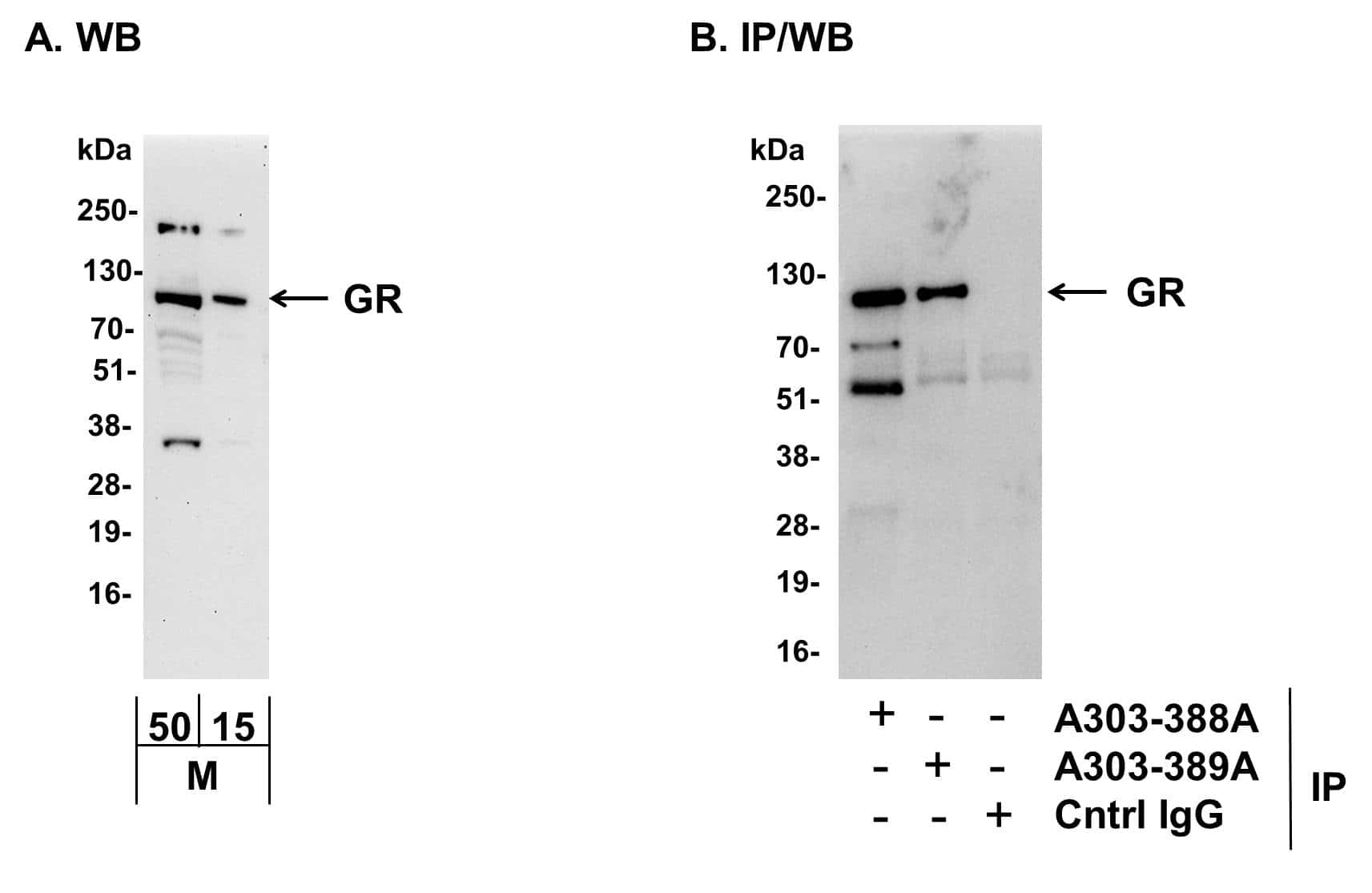 GR Antibody in Western Blot (WB)