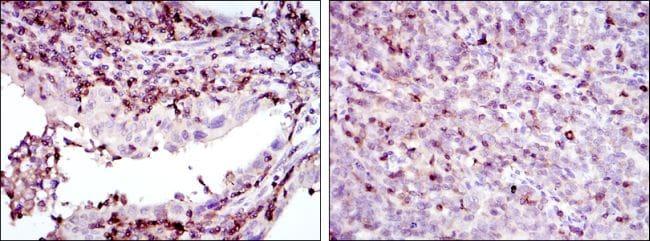 GRK2 Antibody in Immunohistochemistry (IHC)