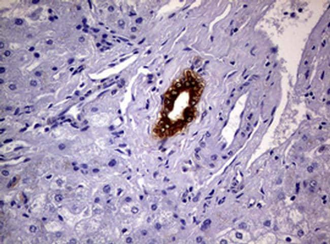 GSTP1 Antibody in Immunohistochemistry (Paraffin) (IHC (P))