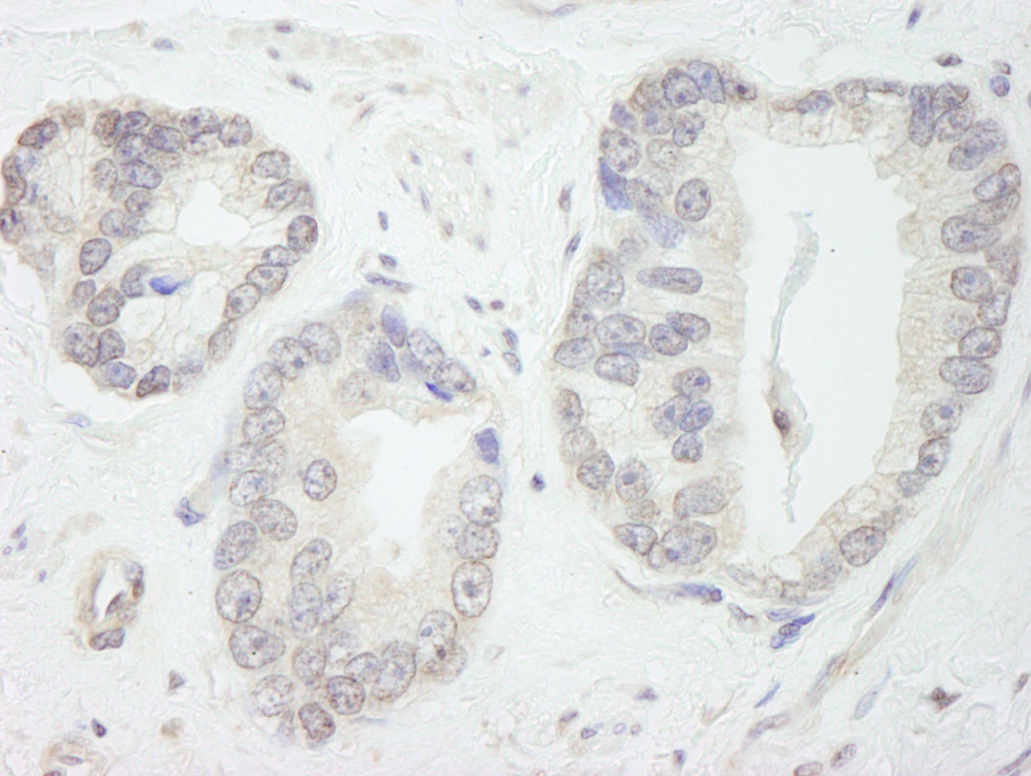 GTF3C1/TFIIIC220 Antibody in Immunohistochemistry (IHC)